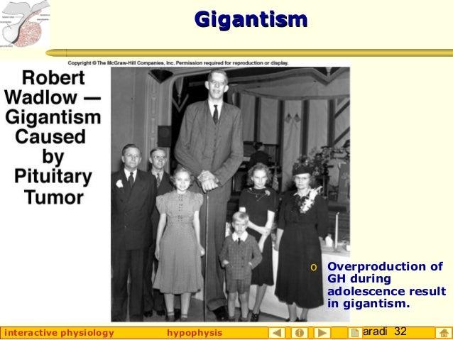 Taradi 32interactive physiology hypophysis GigantismGigantism o Overproduction of GH during adolescence result in gigantis...