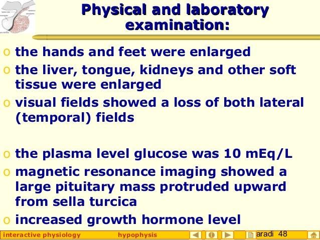 Taradi 48interactive physiology hypophysis PhysicalPhysical and laboratoryand laboratory examination:examination: o the ha...