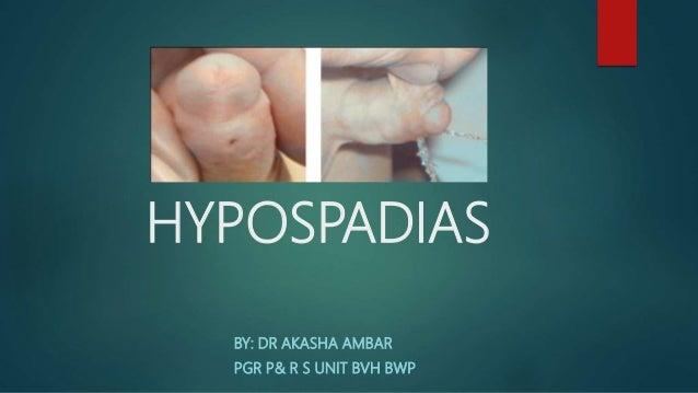 HYPOSPADIAS BY: DR AKASHA AMBAR PGR P& R S UNIT BVH BWP