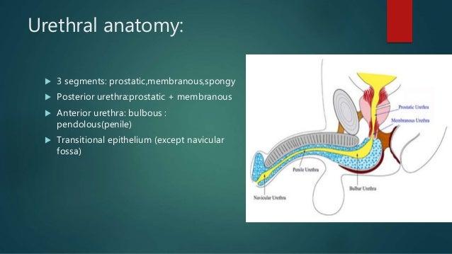 Hypospadias.ppt Slide 3