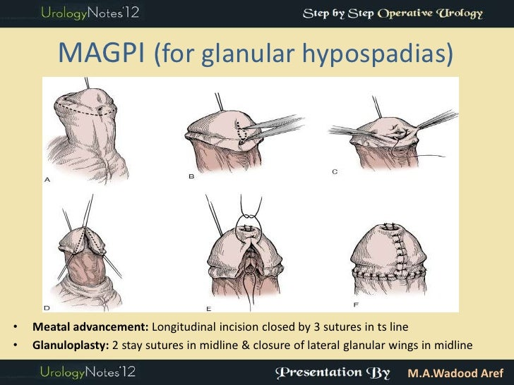 MAGPI abbreviation stands for Meatal Advancement and Glanuloplasty ...