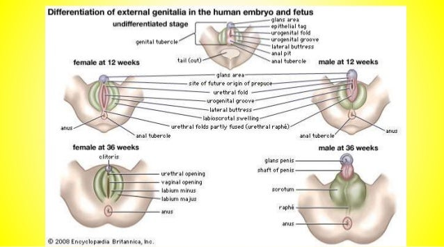 1 in every 250 male Is Congenital defect of the urethra where the urinary opening is not at the usual location on the head...