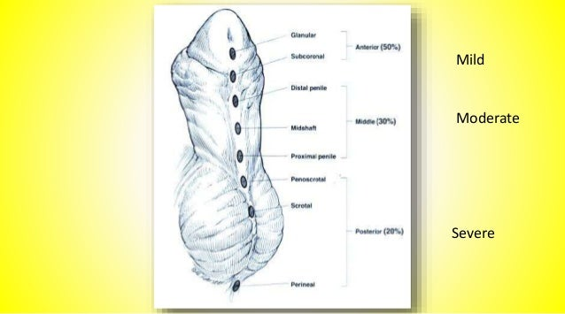 More severe forms of hypospadias are associated with penile curvature (chordee) Chordee : is a condition in which the head...