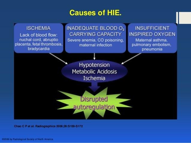 hypoxic ischemic encephalopathy in newborn pdf