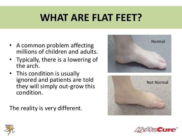 Flat Feet Adults Treatment