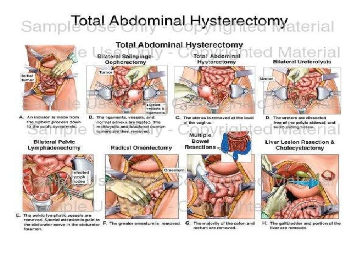 Hysterectomy Powerpoint