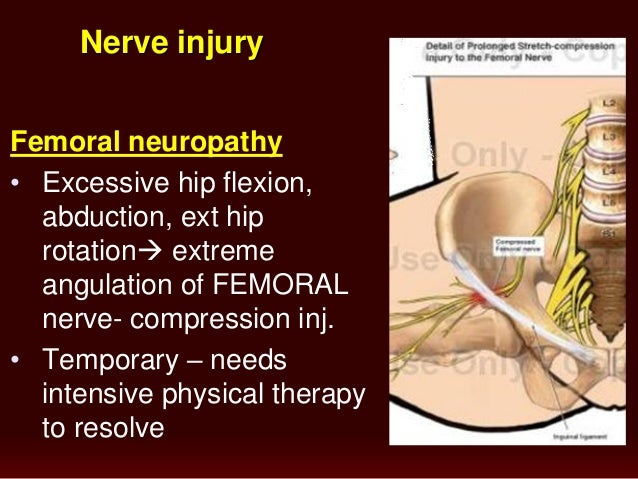 Nerve Compression during Pregnancy - Reviews