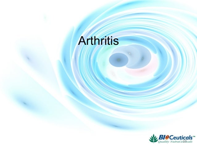 Natural Products As A Gold Mine For Arthritis Treatment