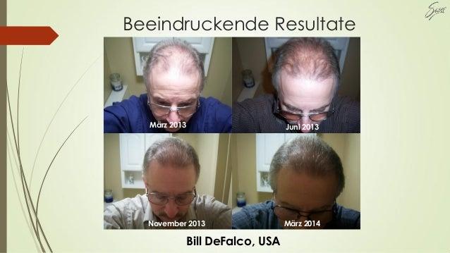 Beeindruckende Resultate März 2014November 2013 Juni 2013März 2013 Bill DeFalco, USA