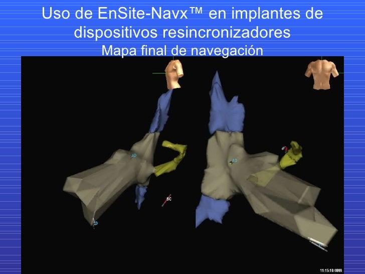 Uso de EnSite-Navx™ en implantes de dispositivos resincronizadores Mapa final de navegación