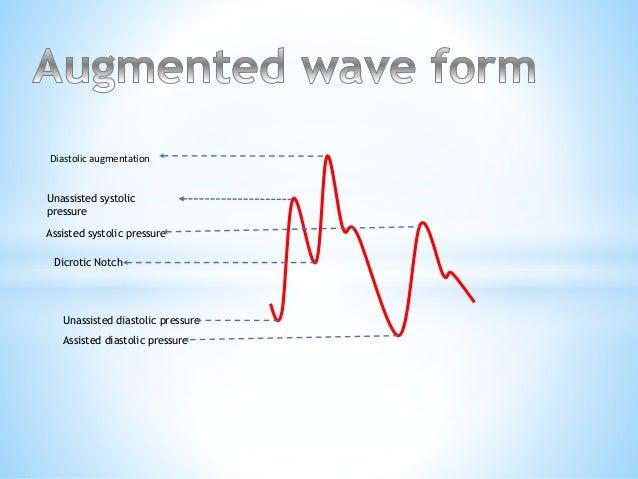 Diastolic augmentation Unassisted systolic pressure Assisted systolic pressure Dicrotic Notch Unassisted diastolic pressur...