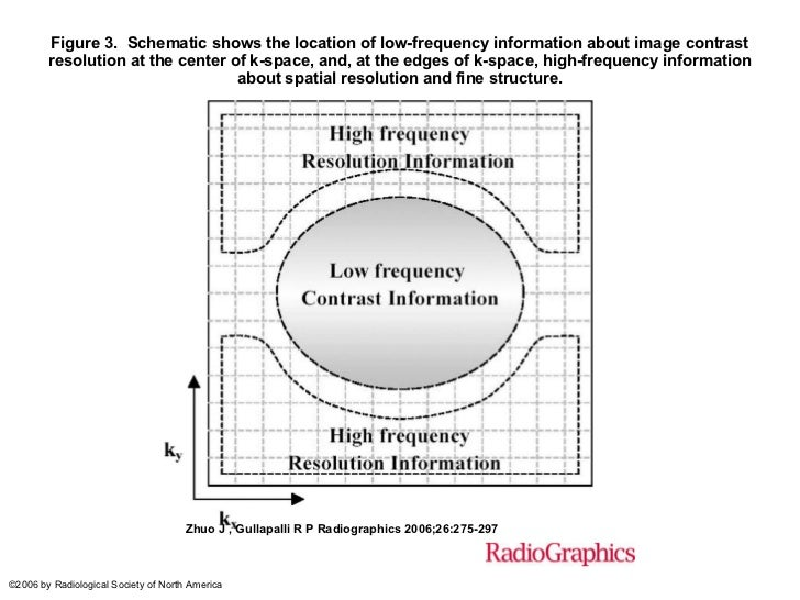 Figure 3.Schematic shows the location of low-frequency information about image contrast resolution at the center of k-sp...