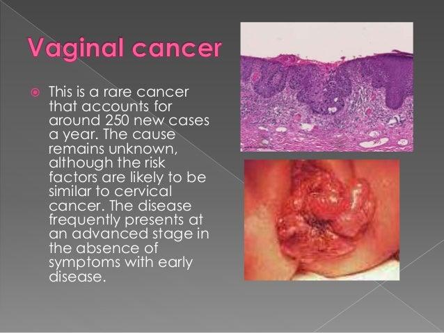 Adenocarcinoma of the vulva photos 55