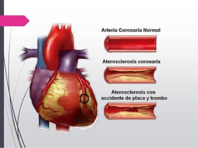 Infarto Agudo al Miocardio.