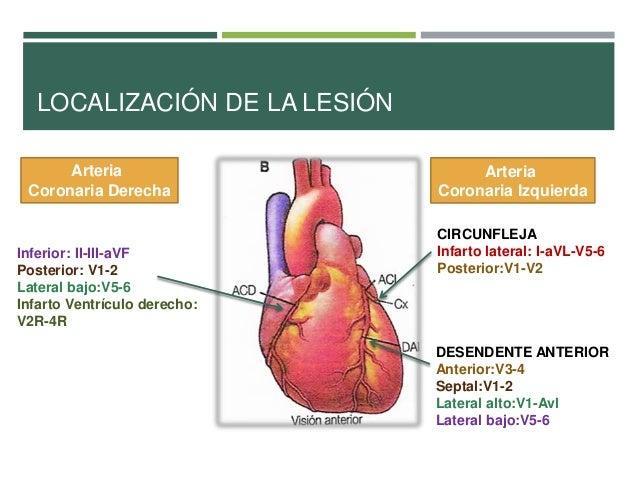 Infarto de Miocardio S ntomas Tratamientos Causas e Informaci n