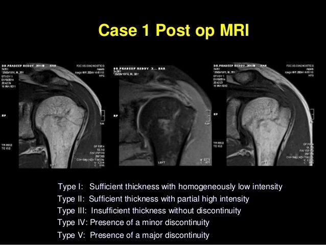 Arthroscopic Transosseous No Implant Rotator Cuff Repair