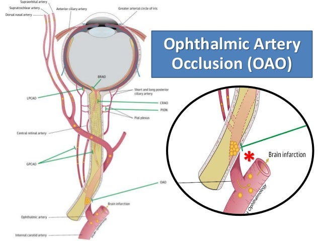 Iatrogenic occlusion of the ophthalmic artery after ...