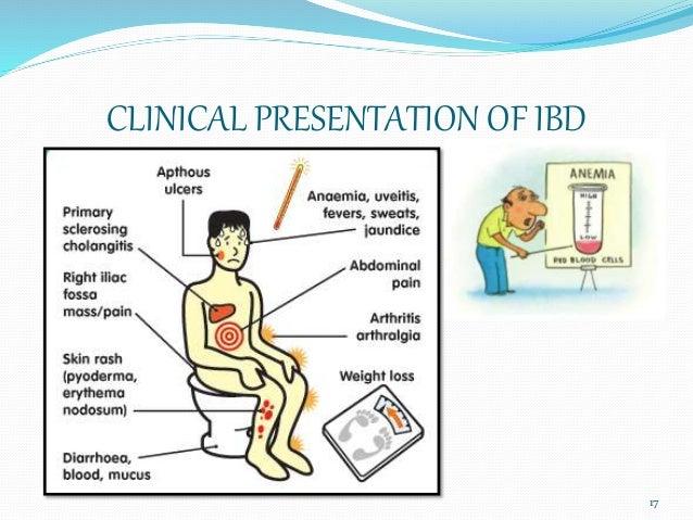 ulcerative colitis non-steroidal anti-inflammatories
