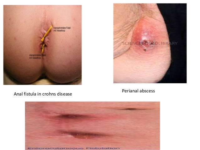 pics of crohns anal tags
