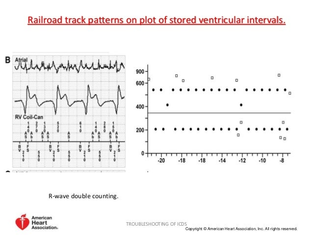 Tachycardia discriminating algorithms and trouble shooting of ICDs