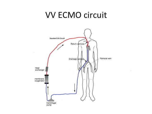 ecmo in nz by mcguinness