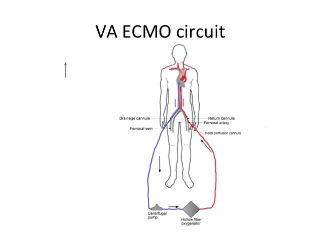 Ecmo In Nz By Mcguinness on Circuit Diagram