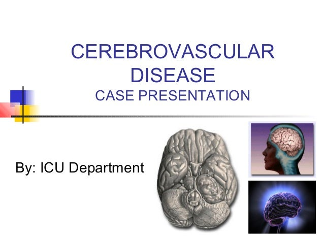 CEREBROVASCULAR DISEASE CASE PRESENTATION By: ICU Department