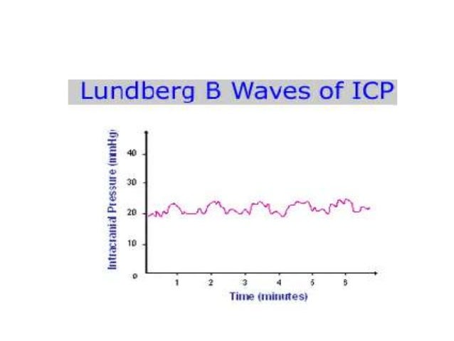 Intracranial pressure - waveforms and monitoring