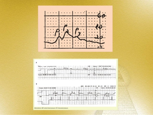 ICP WAVE FORMS             (CONT.)                      C waves•   Lowest amplitude•   Occur in 4 – 8 min intervals•   Nev...
