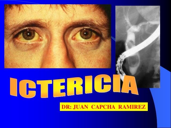 DR: JUAN CAPCHA RAMIREZ