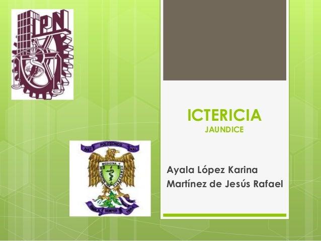 ICTERICIA       JAUNDICEAyala López KarinaMartínez de Jesús Rafael