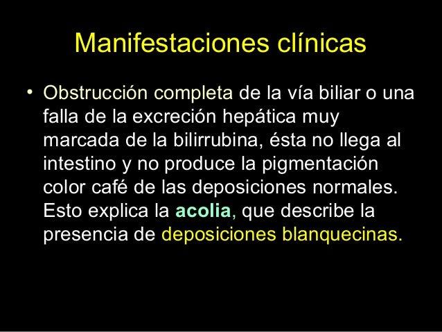 Hiperbilirrubinemia indirecta • Una causa muy infrecuente de elevación de bilirrubina no conjugada es el síndrome de Crigl...
