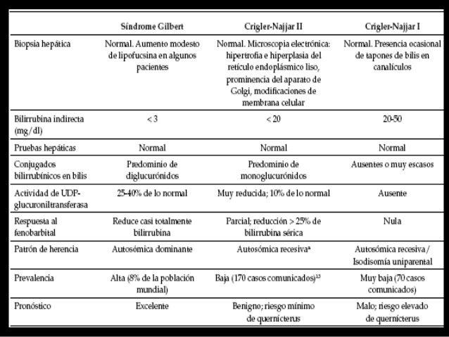 • ERCP. Un cálculo vesicular calcificado comprime al CHC.