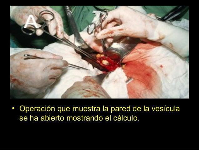 Fuente del virus heces sangre/derivfluidos corporales sangre/deriv fluidos corporales sangre/deriv. fluidos corporales hec...