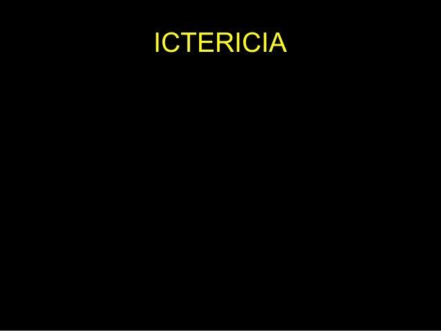 Ictericia • La ictericia se refiere al color amarillo que toma la piel debido al aumento de la bilirrubina en la sangre. •...