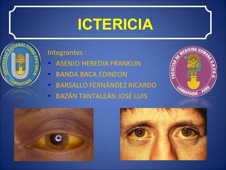 ICTERICIA <ul><li>Integrantes : </li></ul><ul><li>ASENJO HEREDIA FRANKLIN </li></ul><ul><li>BANDA BACA EDINZON </li></ul><...