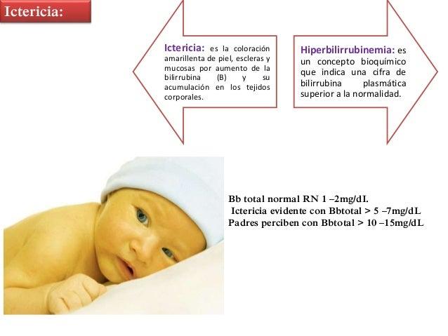 Ictericiay sepsis  Pediatria Slide 2