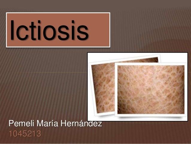 Ictiosis  Pemeli María Hernández  1045213