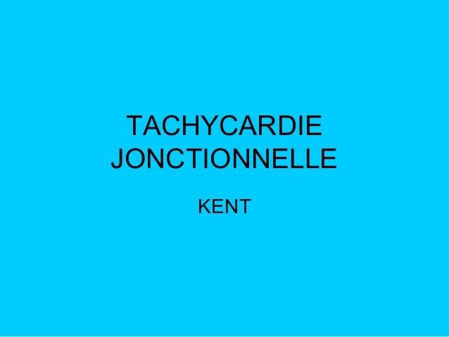TACHYCARDIE JONCTIONNELLE KENT
