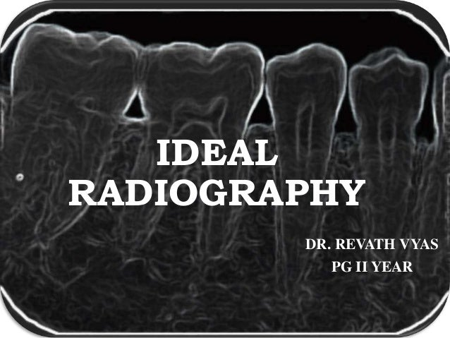 IDEAL RADIOGRAPHY DR. REVATH VYAS PG II YEAR