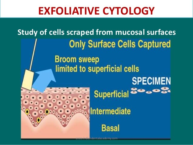(PDF) Oral hairy leukoplakia: An exfoliative cytology study