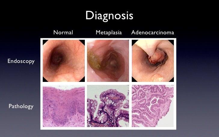 Diagnosis             Normal    Metaplasia   Adenocarcinoma    Endoscopy     Pathology