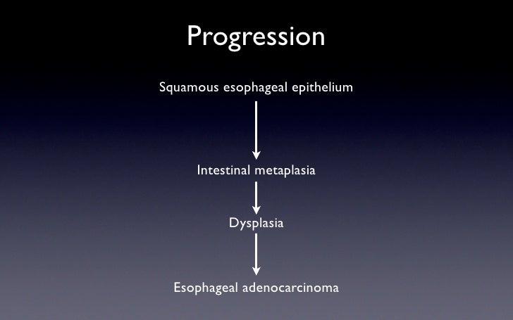 Progression Squamous esophageal epithelium          Intestinal metaplasia             Dysplasia      Esophageal adenocarci...