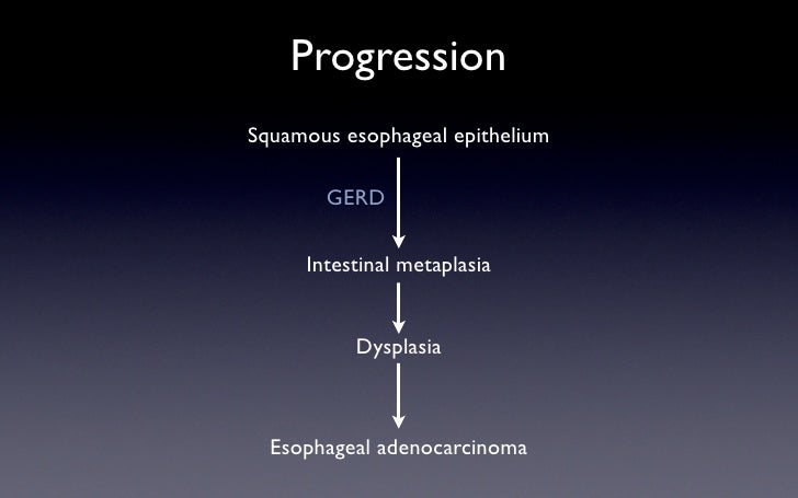 Progression Squamous esophageal epithelium         GERD       Intestinal metaplasia             Dysplasia      Esophageal ...