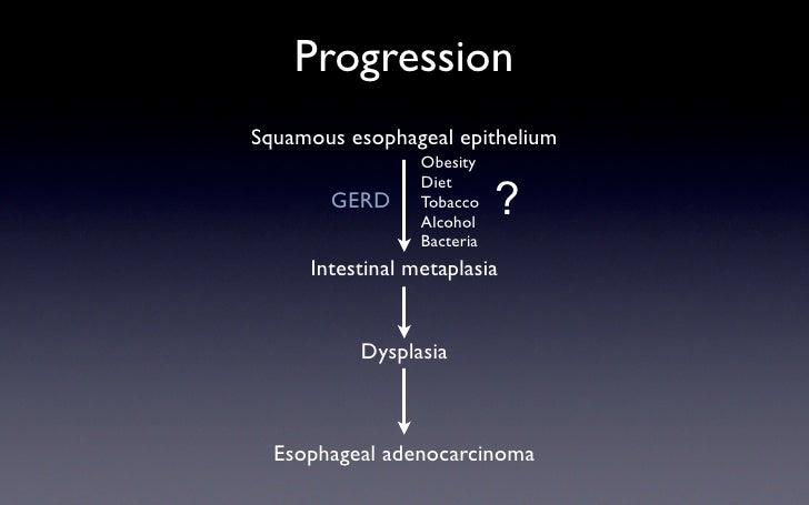 Progression Squamous esophageal epithelium                  Obesity                  Diet                             ?   ...