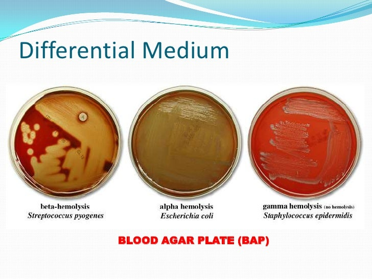 selective vs differential media essay Selective media for isolation of mycobacterium tuberculosis from sputum and other samples macconkey agar differential media for enterobacteriacaeae (ie, lactose fermenting and non-lactose fermenting).