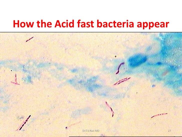 disease organisms essay Exam 1) any organism that causes disease is classified as a(n) (1pts) pathogen mechanical vector antigen biological vector 2) immunity that develops over time due to exposure to various.