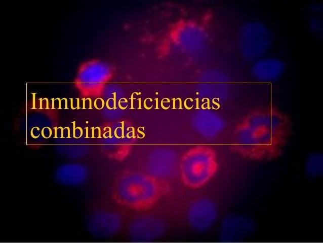 Inmunodeficiencias combinadas