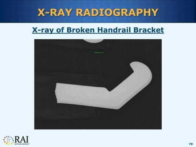 78 X-RAY RADIOGRAPHY X-ray of Broken Handrail Bracket