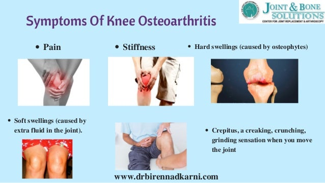Best Natural Treatment For Osteoarthritis Of The Knee